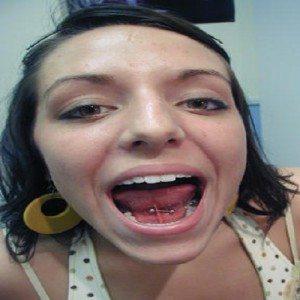 tongue web 2