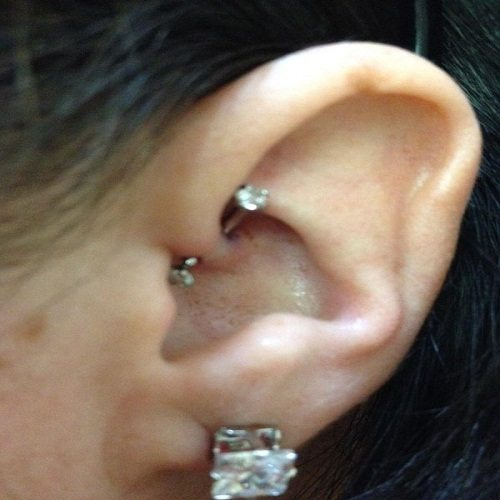 Get A Detailed Insight On Migraine Relief From Piercing